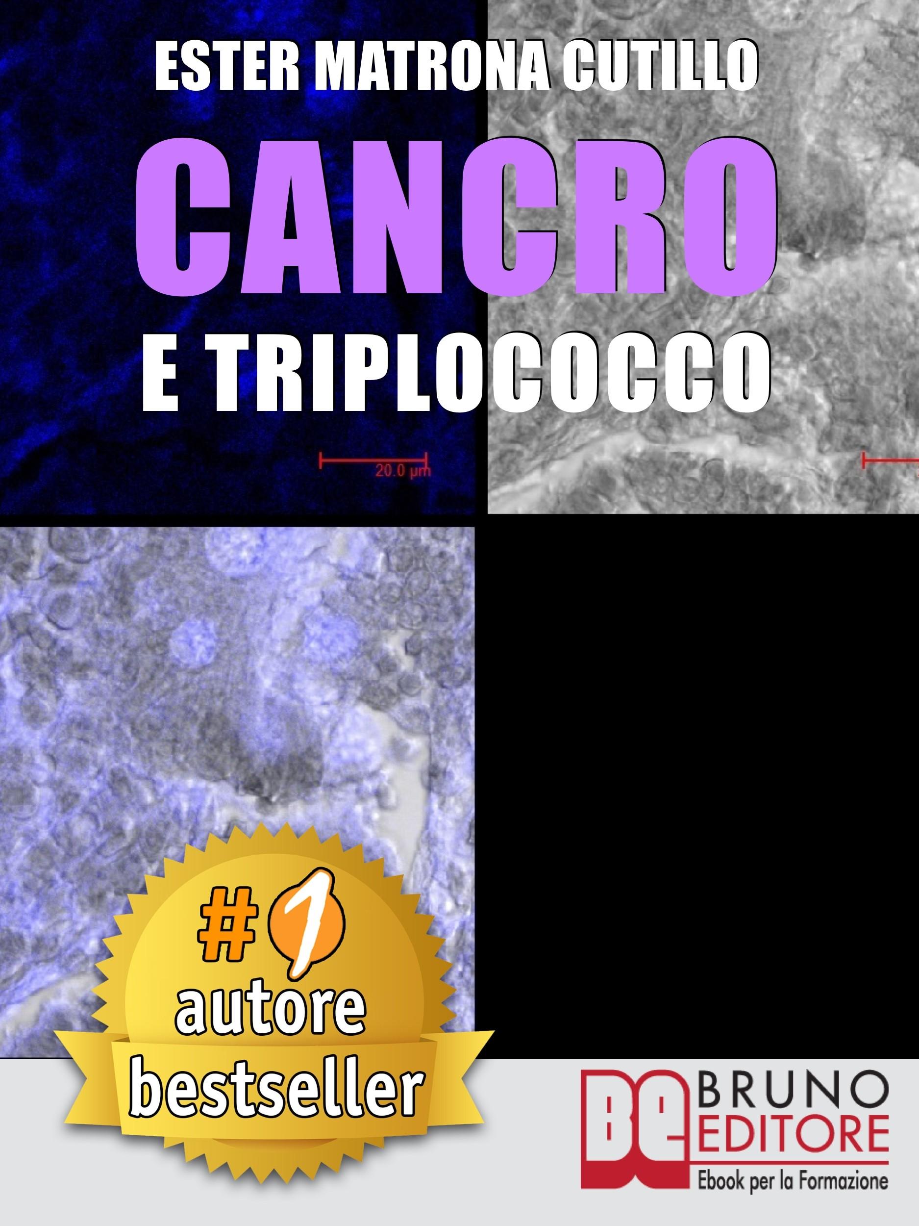 Cancro e Triplococco